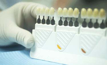 審美歯科についての考え方