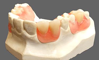 最新の部分入れ歯