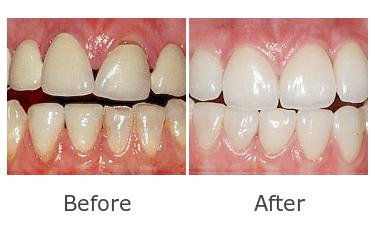 審美歯科症例12