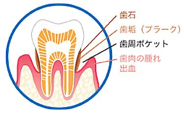 歯周病治療についての考え方